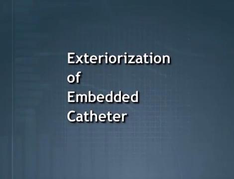 Exteriorization of Embedded Catheter | Baxter Empowers