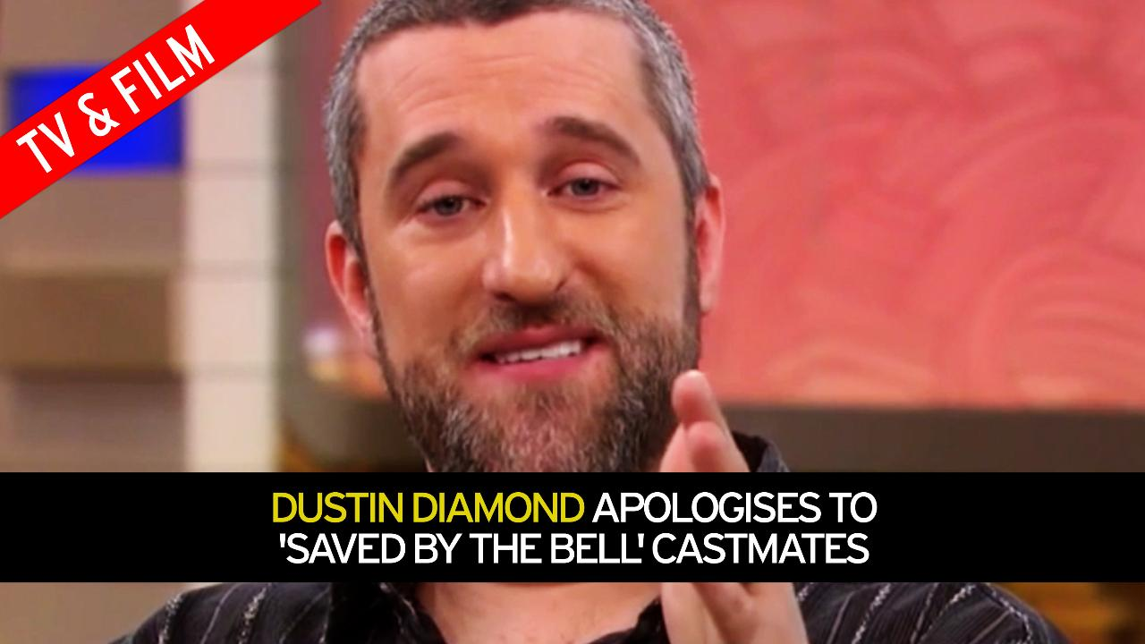 'Saved by the Bell' star Dustin Diamond shares cancer diagnosis