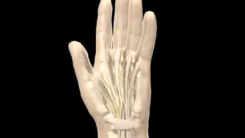 NHS VIDEOS | Carpal tunnel syndrome animation - NHS